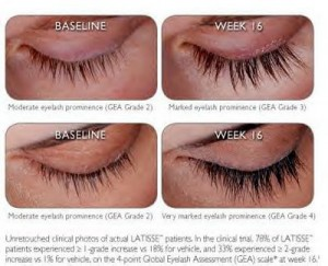 latisse20before20and20afters20web3