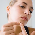 ACNE: THE #1 COMPLEXION CONCERN FOR ALL WOMEN