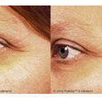 PRETTIER WITH PELLEVE Wrinkle Reduction System