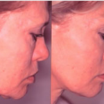 DEEP SEE LIFTING WITH ULTHERAPY