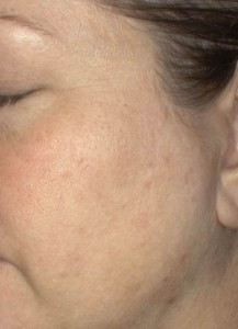 After using the Clarisonic Acne Cleansing System