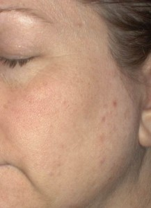 Before using the Clarisonic Acne Cleansing System