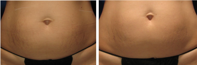 Before and After Sublative Treatment of Stretch Marks