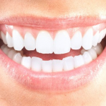 LONG IN THE TOOTH? GET RID OF THAT GUMMY SMILE
