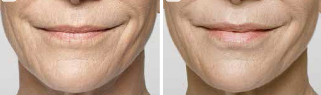 Source: Galderma Before and after treatment with Restylane® Silk and Restylane-L®. Treatment included: 2.8 ml of Restylane® Silk in the lips in perioral lines and 1 ml of Restylane-L® in the nasolabial fold