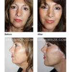 GUEST EXPERT: RAPID RECOVERY FACIAL PLASTIC SURGERY
