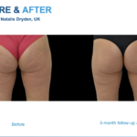 THE LATEST WEAPON IN THE FIGHT AGAINST CELLULITE